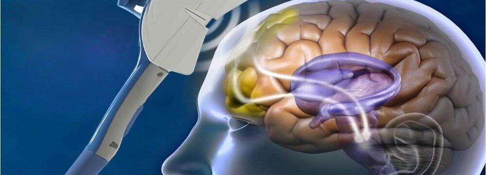 Методы транскраниальной магнитной стимуляции мозга в Одессе